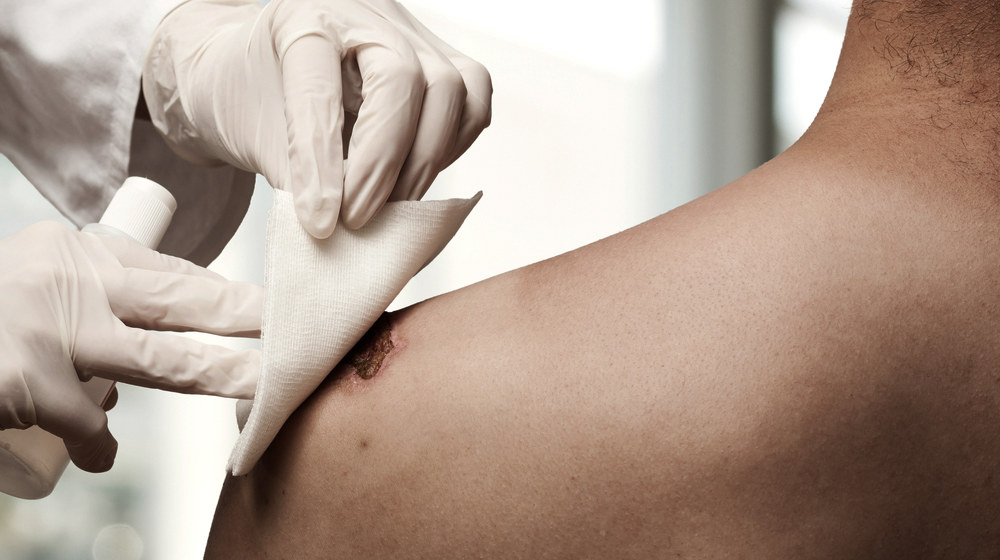 changes-dressing-wound-prp-injection-ss-FEATURE